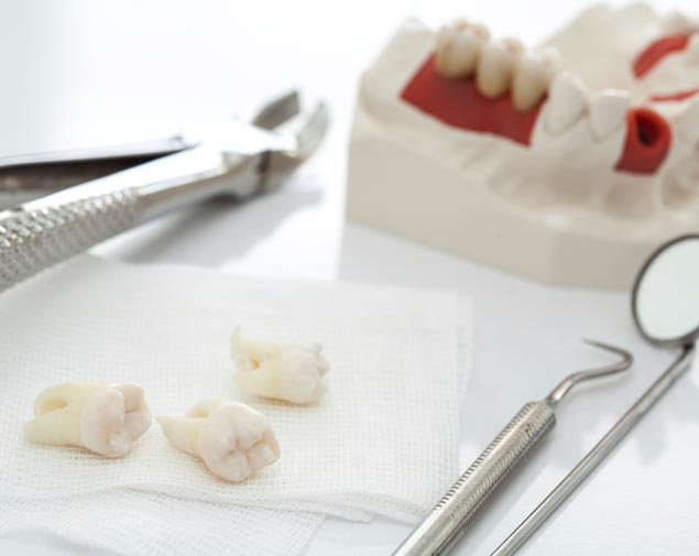Zalecenia dla Pacjenta po ekstrakcji zęba